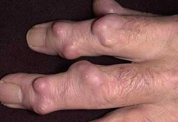 Higroma no dedo: para remover ou não?