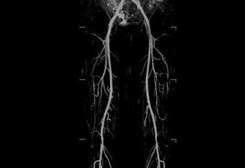 Choroba zarostowa kończyn dolnych: przyczyny, objawy i leczenie