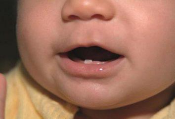 Come distinguere un dente da latte degli indigeni nel bambino?