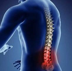 Akute Rückenschmerzen: Ursachen und Behandlung