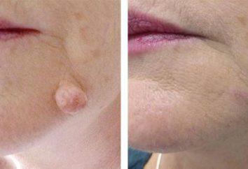 Laserowe usuwanie brodawek lub azotu: co jest lepsze, skąd opinie konsekwencje