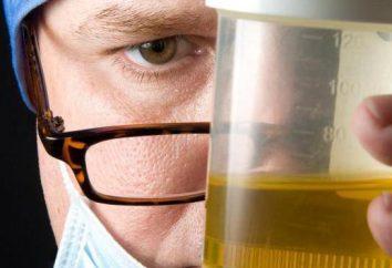 Mikroalbuminuria – co to jest? Warunki zbierania moczu do analizy