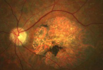 Choroba Stargardta: opis, przyczyny, objawy i możliwości leczenia
