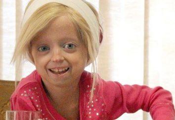 Crianças Progeria: Você tem filhos uma chance?