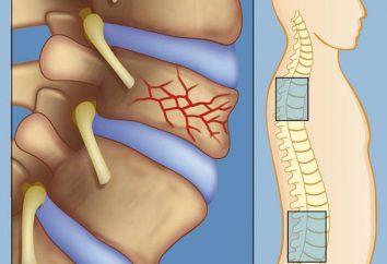 fracture de la colonne vertébrale. la colonne vertébrale traitement des fractures. Les premiers soins, la chirurgie, la réadaptation