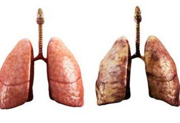 Jak leczyć zapalenie płuc poprawnie