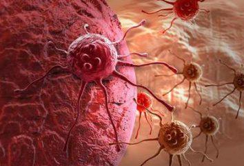 guma Rak opis, przyczyny objawów, a zwłaszcza etap obróbki