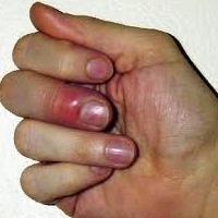 Finger félon. Le traitement à domicile possible?