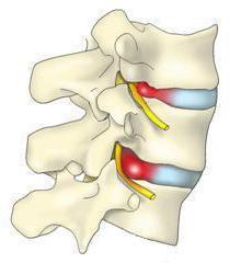 eingeklemmeter nerv rippenbereich atmung