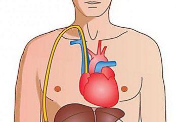 Aszites Leberzirrhose. Behandlung: Medikamente, Volksmedizin. Diät, Prognose