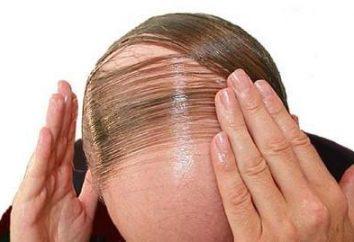 Co zrobić, jeśli włosy wypadają