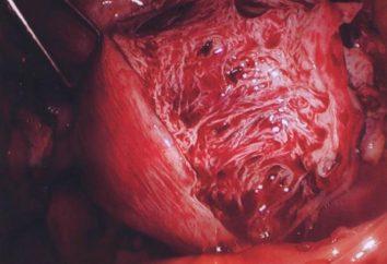Rozproszone forma adenomyosis: objawy, diagnoza i leczenie chorób