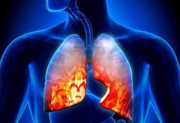 Pneumonie eosinophil: Beschreibung, Symptome, Ursachen und Eigenschaften der Behandlung
