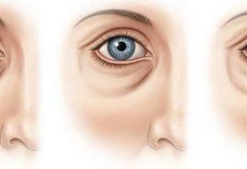Tränen-Nasen-Furche: Fotos vor und nach der Korrektur