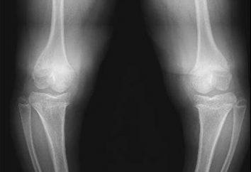 Dysplazja spondyloepifizyska kończyn górnych i dolnych: przyczyny i charakterystyka leczenia