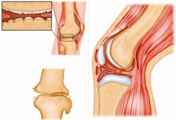 Gruźlica kości i stawów: przyczyny, objawy, leczenie