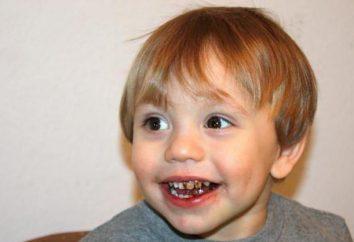 Dlaczego czarne zęby u dziecka: możliwe przyczyny, jak rozwiązać ten problem