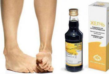 bile medica con osteoartrite del ginocchio: recensioni