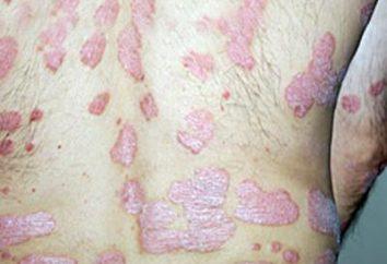 Czerwone łuszczące się plamy na ciele: Grzybica i inne zakażenia grzybicze