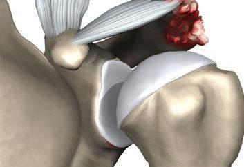 stawów barkowo-obojczykowego: struktura, patologia