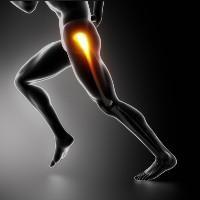 coxartrosis cadera: los síntomas. hip grado coxartrosis 2: Tratamiento