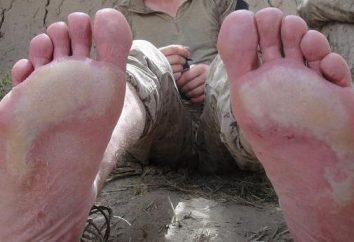 Stopa okopowa – przykra choroba mokrych stóp i mrożone