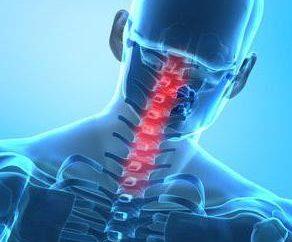 Le fratture delle vertebre cervicali: gli effetti e trattamento