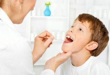 Nota informativa: il trattamento di gola rossa
