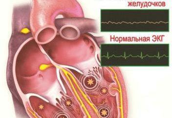 arythmie ventriculaires: symptômes et traitement