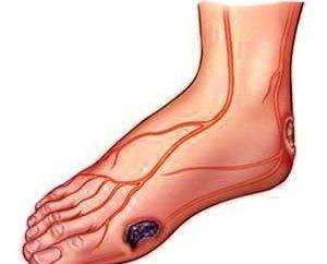 Details darüber, was und wie Wunden an den Beinen zu behandeln