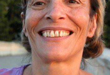Parodontite: symptômes et traitements