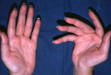 Trattamento dell'artrite delle dita