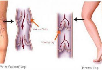 Enfler les veines sur les jambes sous charge – ce qu'il faut faire?