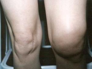 Warum wurde das Knie geschwollen und wund? Ursachen und Behandlung