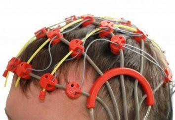 Echoenzephalografie Gehirn bei Kindern: ein Transkript einer Norm
