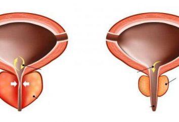 Causas, síntomas, diagnóstico y tratamiento de la prostatitis bacteriana