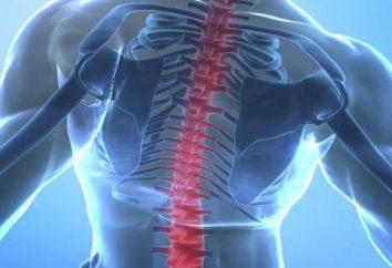 anchilosante sieronegativi: sintomi, diagnosi e trattamento