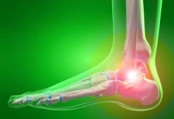 Osteoarthritis des Knöchel: Symptome und Behandlung. Ursachen und Prävention von Arthrose des Sprunggelenks
