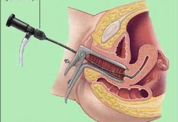 La histeroscopia útero – ¿qué es? útero Histeroscopia: tipos, indicaciones, el costo del procedimiento
