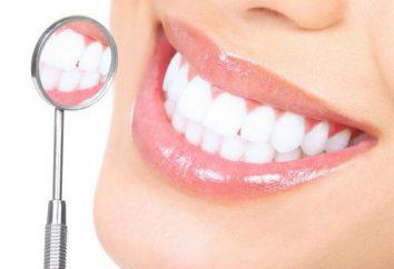 Le principali malattie dentali e la loro descrizione