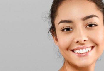 Les produits qui laissent des taches sur vos dents