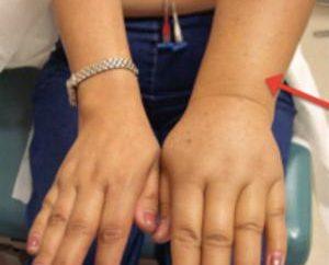 Limfostazom ręce po mastektomii: przyczyny, objawy i leczenie