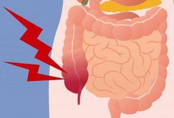 Prevenzione di appendicite. Che cosa è l'appendicite? Come evitare la malattia