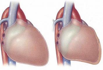 Objawy zapalenia osierdzia serca i leczenia. Suche zapalenie osierdzia: Objawy