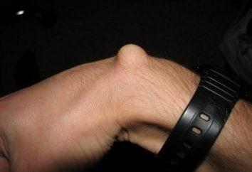 Une bosse sur une veine de la main, les causes de