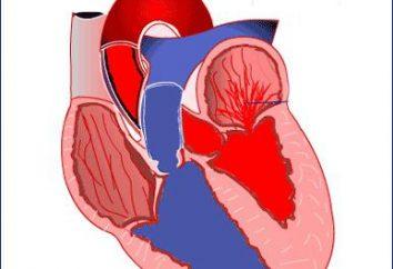 ¿Cómo funciona la válvula mitral. El prolapso de los velos, y sus síntomas
