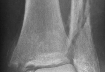 złamanie kostki: przyczyny, objawy i leczenie