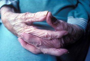 Se retiró después de 80 años: primas y asignaciones. Fondo de pensiones de RF