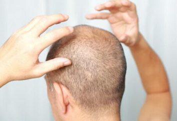 Foliculitis del cuero cabelludo: causas, síntomas, tratamiento