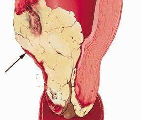 rak szyjki macicy: przyczyny, etapy i leczenie